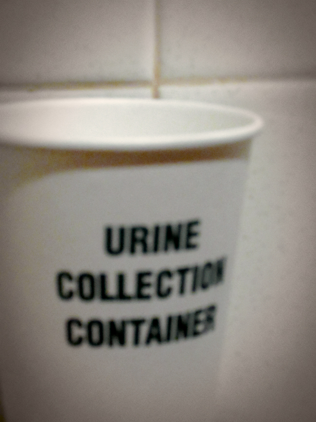 urine-collection-container